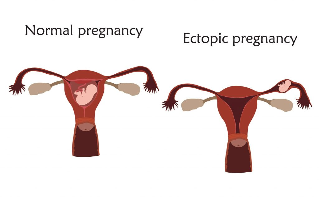 Depiction of normal pregnancy and ectopic pregnancy
