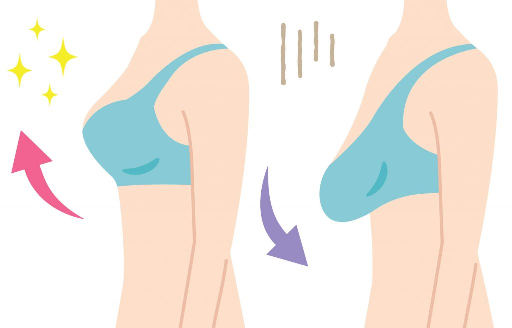 Breast sagging as the result of body changes after giving birth
